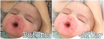 Two photos of a baby sleeping. One has text that reads before. The other photo has text that reads after.